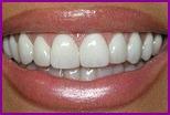 Делаем красивые зубы