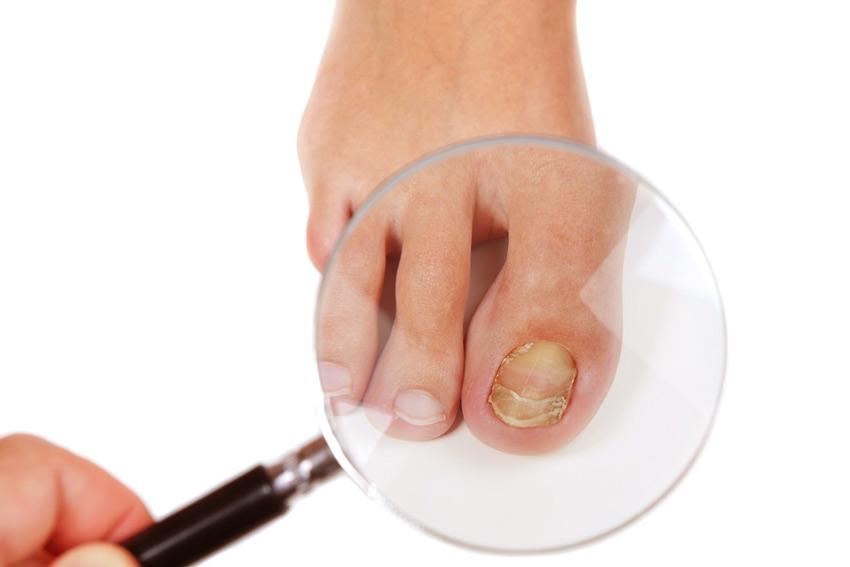 Лечение грибка ногтей уксусом, как лечить правильно, Женский журнал о красоте и здоровье